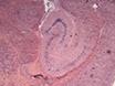 En<em&gt; Ex vivo</em&gt; Modell av en oligodendrocyte styrt T-Cell angrep i akutt hjerneskiver thumbnail