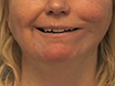Single-stage Dynamic Reanimation of the Smile in Irreversible Facial Paralysis by Free Functional Muscle Transfer thumbnail