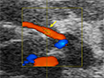 Ultrasound Based Assessment of Coronary Artery Flow and Coronary Flow Reserve Using the Pressure Overload Model in Mice thumbnail