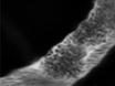 Rose Bengal Photothrombosis by Confocal Optical Imaging <em>In Vivo</em>:  A Model of Single Vessel Stroke thumbnail