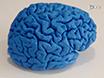 Hochauflösende Strukturkernspintomographie des menschlichen Subcortex<I&gt; In-vivo-</I&gt; Und Postmortem thumbnail