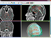 خط أنابيب ل3D Multimodality صورة التكامل وبمساعدة الحاسوب، التخطيط في جراحة الصرع thumbnail