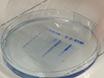 <em>In</em> - <em>vitro</em> - Zerlegung von Influenza - A - Virus Kapside durch Gradientenzentrifugation thumbnail