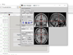 Application of Granger Causality Analysis of the Directed Functional Connection in Alzheimer's Disease and Mild Cognitive Impairment thumbnail