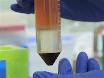 Tümör Engraftment insan Mantle hücreli lenfoma, Xenograft fare modeli thumbnail