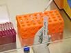 Real-time skælven-induceret konvertering Assay til påvisning af CWD prioner i Fecal materiale thumbnail