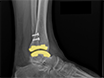 Treatment of Ankle Osteoarthritis with Total Ankle Replacement Through a Lateral Transfibular Approach thumbnail