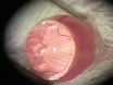 Puncture-Induced Iris Neovascularization as a Mouse Model of Rubeosis Iridis thumbnail