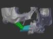 Designing CAD/CAM Surgical Guides for Maxillary Reconstruction Using an In-house Approach thumbnail