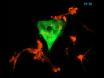 3-D celle kultur-systemet for å studere invasjonen og evaluere legemiddelselskap i blærekreft thumbnail